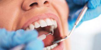 Le détartrage dentaire - techniques - avantages
